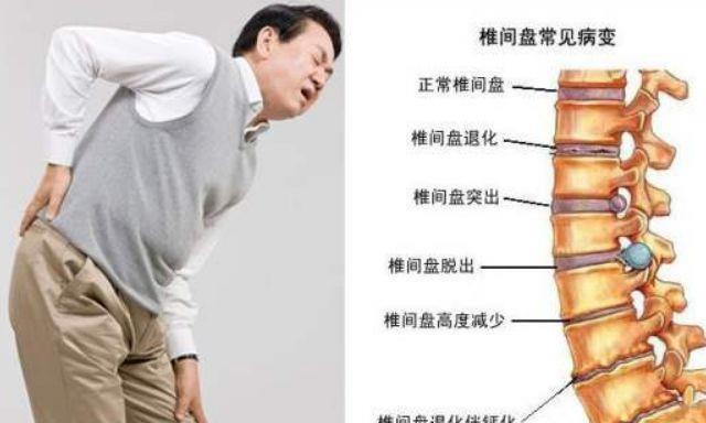 腰间盘突出怎么锻炼?这6个小动作能缓解痛苦!坚持做效果明显