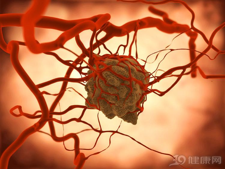 一份真实数据:生存率上升8%,电场疗法是下一个抗癌利器吗?