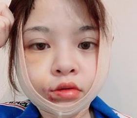 27岁女网红自曝为整容削骨!曾为星二代男友堕胎,被斥后扬言自杀