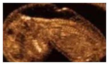 孕期检查,如何对宝宝染色体异常进行筛选?再省也别忽略这个项目