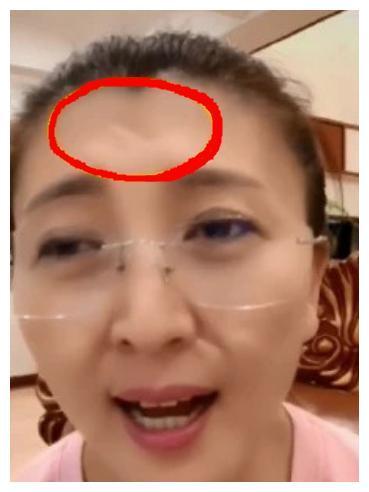 48岁闫学晶素颜直播唱歌,额头中央凹陷似伤疤,身后豪宅抢镜