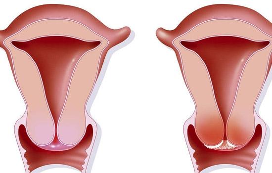欧洲女人阴�_6类女性易患宫颈癌|宫颈癌|阴道|女性