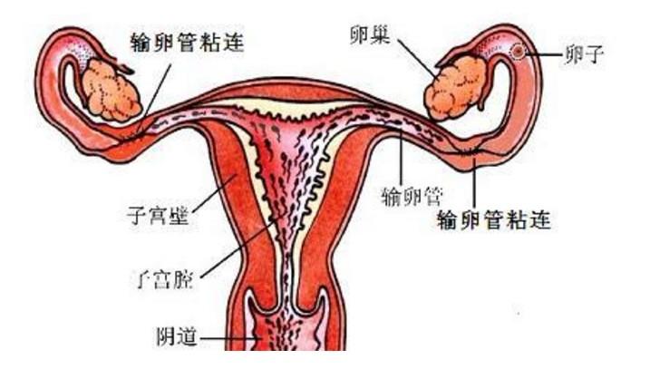 多处粘连坚持艾灸仍然可以怀孕生子(07)