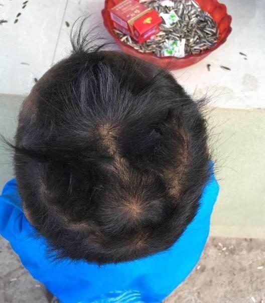 有的宝宝头上有两个发旋, 有的只有一个, 这是为什么?图片