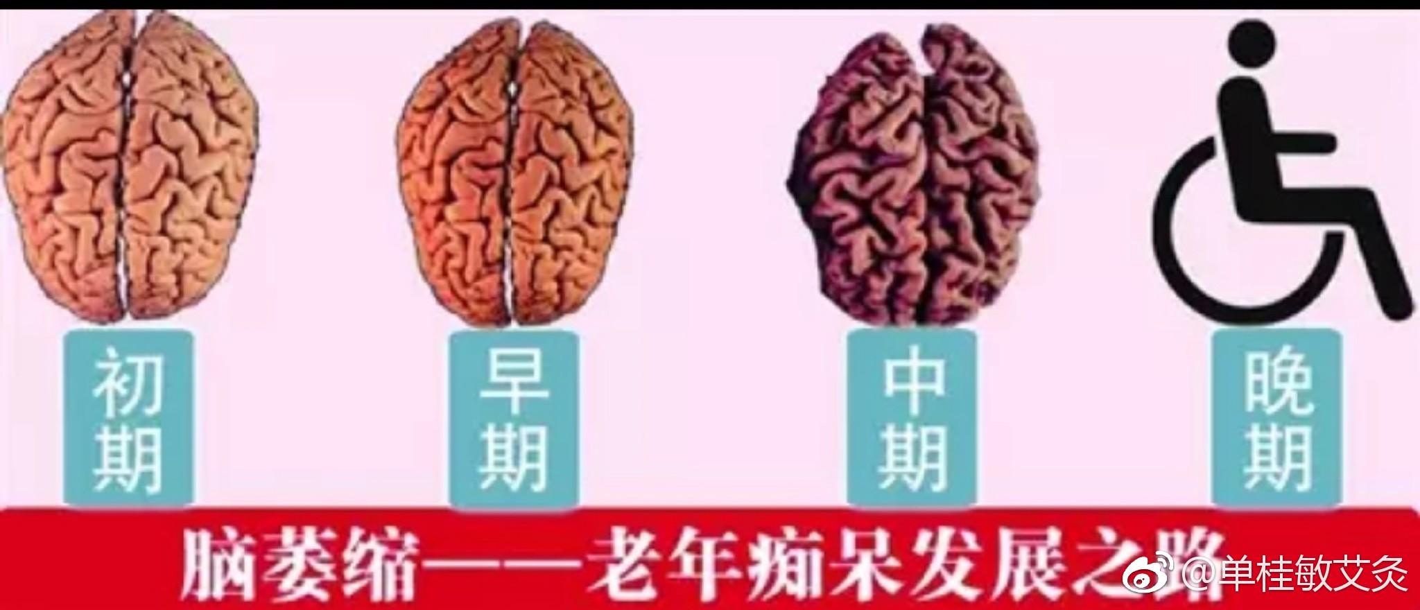 脑萎缩是老年痴呆的发展过程
