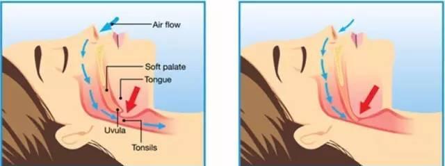 嗓子内部结构图片