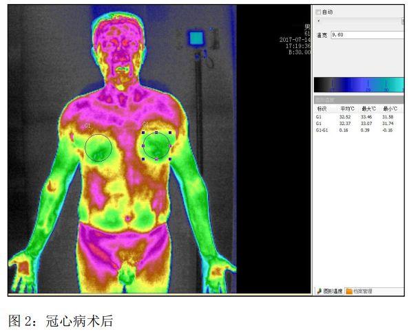 《红外热成像技术筛查冠心病的临床探讨》登入《中医临床研究》