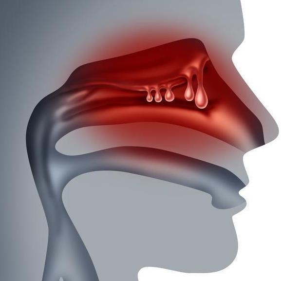 鼻息肉会恶化成癌症吗? 得了鼻息肉是否真的要手术?
