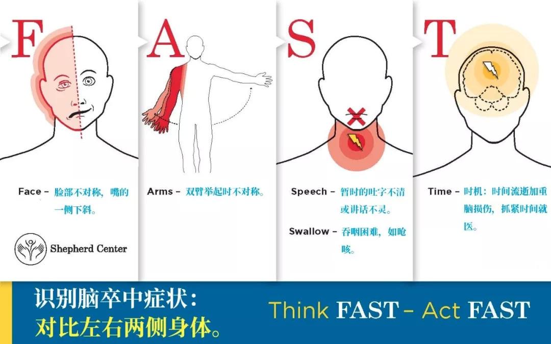 脐带血有助于缺血性脑卒中患者恢复!