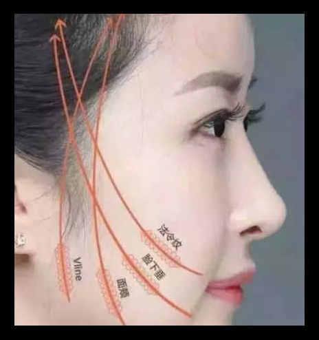 什么是面部线雕? 面部线雕有什么副作用?