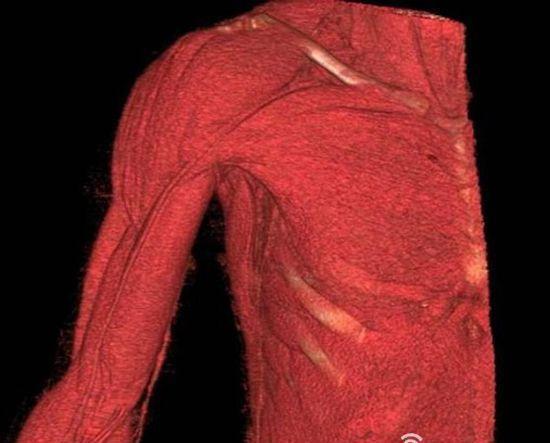 达芬奇人体解剖图 遗失百年终见真迹