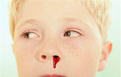 梦到鼻子血流不止怎么办