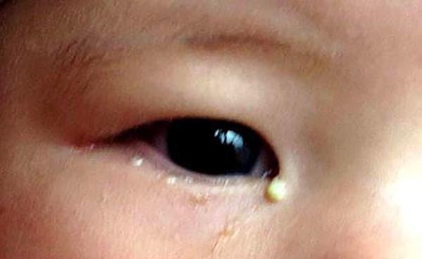 宝宝经常无故流泪,医生用针插入宝宝眼睛,宝妈一看顿时慌了神