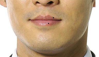 嘴唇有痣的人在面相中有什么含义图片