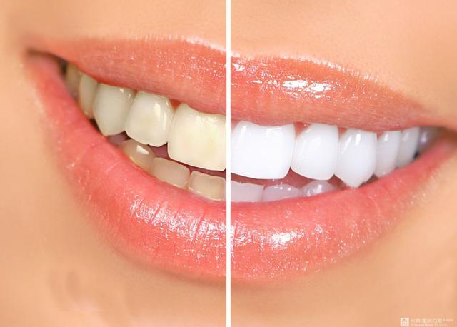 牙黄还口臭?早上刷牙加上它,去除口臭,还你一口白牙!