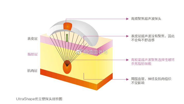 溶脂针会在体内多久有效