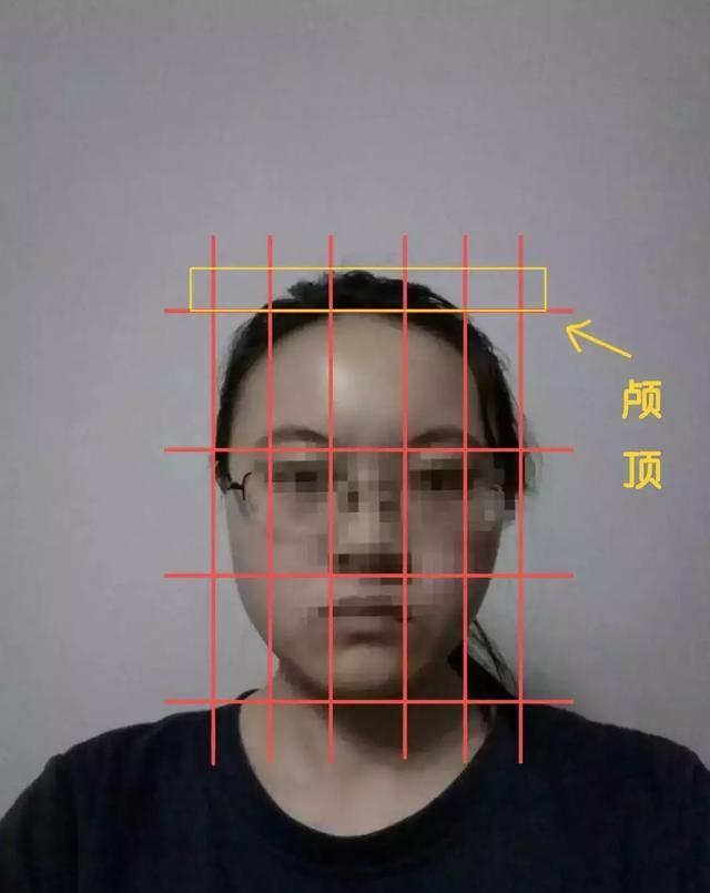 发际线略高,额头宽大,以及颅顶过低,继而导致图片