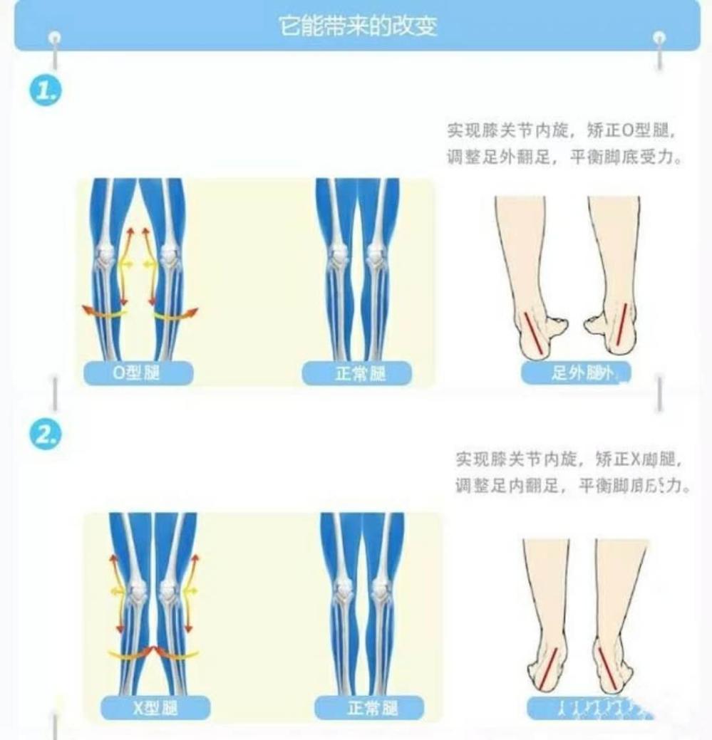 原因 x 脚 X脚改善で筋トレはNG!道具を使わずストレッチだけで根本原因から改善する方法
