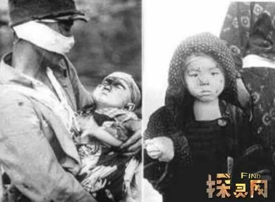 广岛辐射后的蛇怪异恐怖, 核辐射变异人活的最为悲惨