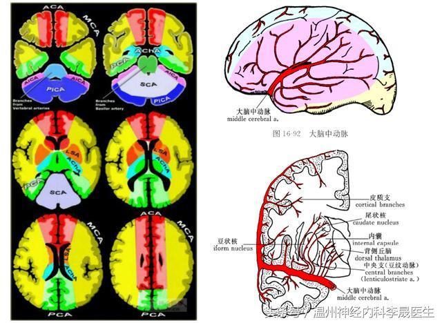 李医生说中风,简单谈谈大脑中动脉