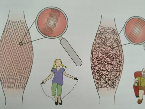 身体上的疼痛大多来自于筋的两种异常状态