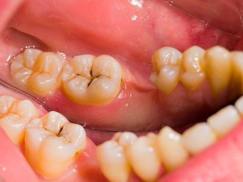 这个方法可以预防90%以上的蛀牙!做家长的要注意了!