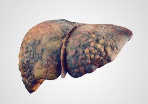 """身体发出3个异常""""信号"""",可能是肝硬化找上门了,别硬抗"""