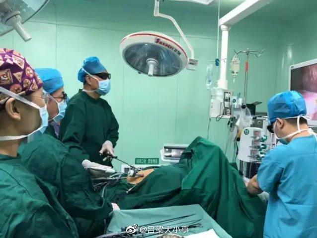 山西省汾阳医院普外科又成功开展 一项省内先进水平微创手术