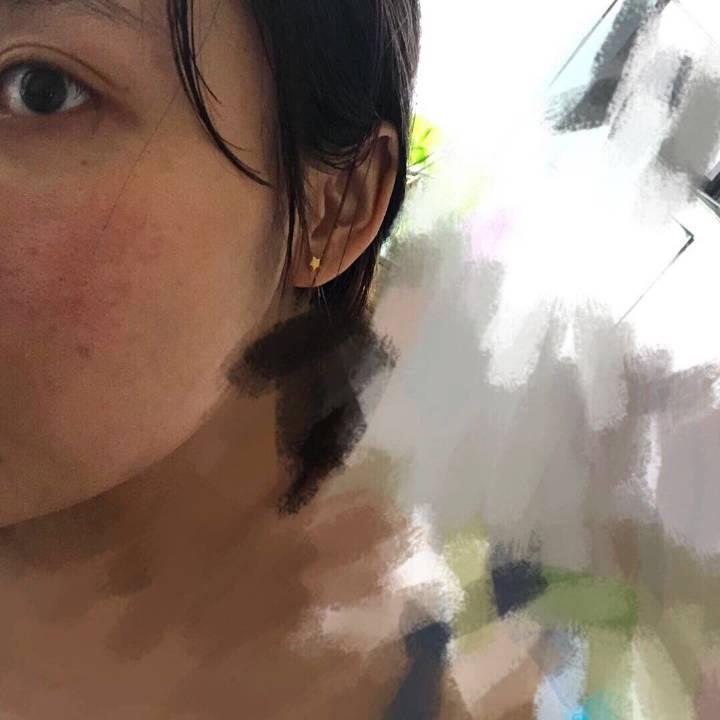 超详细一个皮肤屏障受损,皮炎反复3年的光子嫩肤分享
