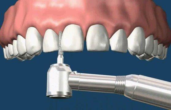 门牙牙缝大不仅是漏财,还影响美观,牙缝大可以选择牙贴面修复