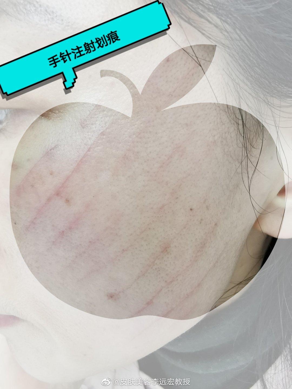 不规范的医美操作,后果十分严重。图一:美容院开展的水光注射