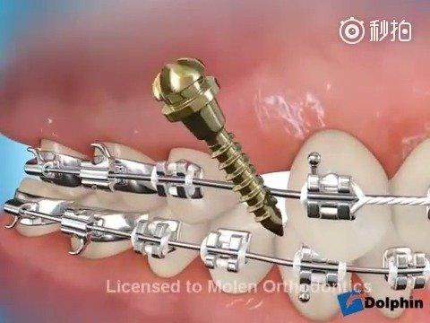 骨钉+橡皮链,把拔牙间隙关闭,并且达到内收前牙的目的