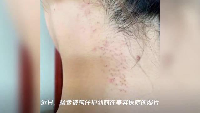 杨紫回应现身整形美容医院:抽空去护肤和祛个碎发,没想到被关注~