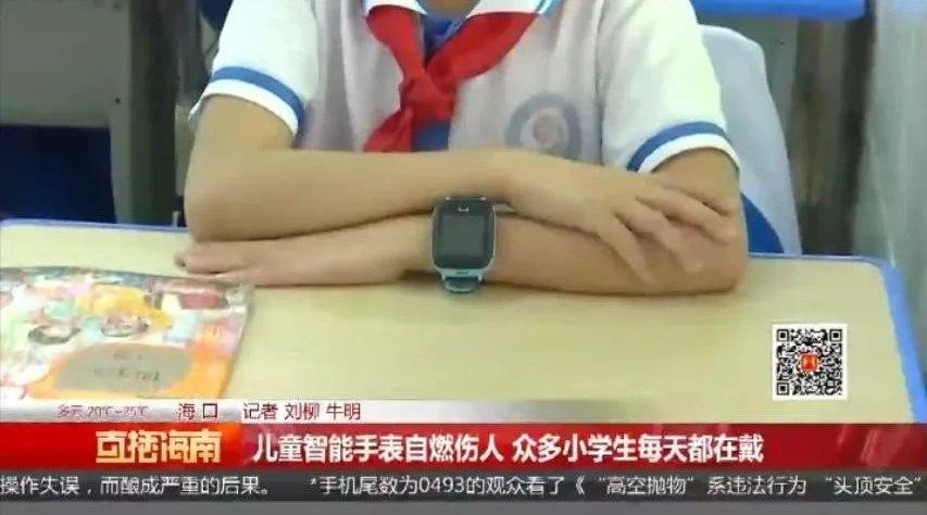 儿童智能手表突然自燃,一名学生手腕被烫伤!家长选购应注意这些