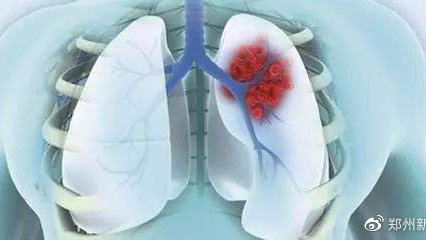 郑州人民医院南部院区免费肺结节筛查实施方案