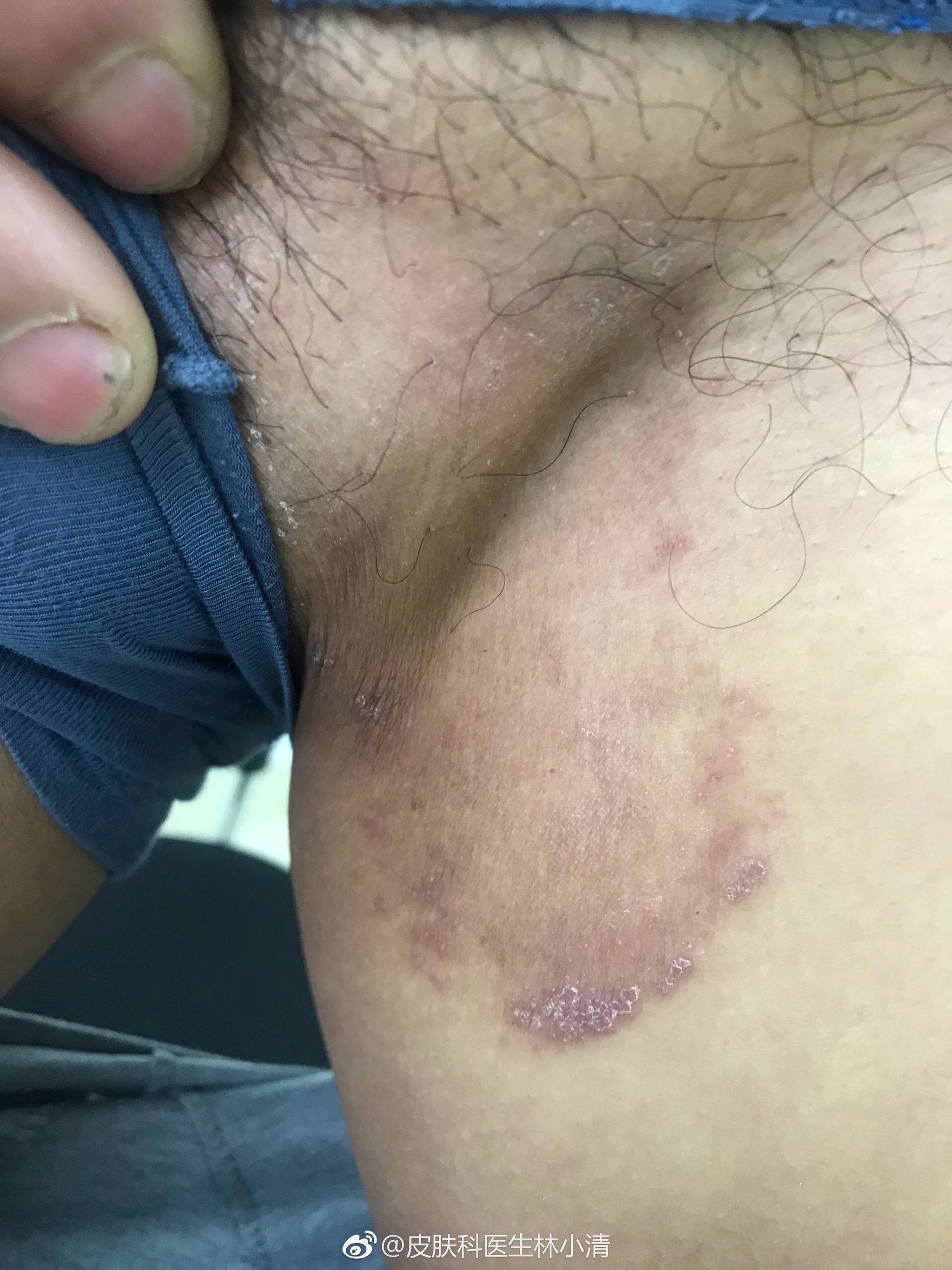 股癣,为真菌感染性疾病,有传染性,好发于腹股沟、臀部等