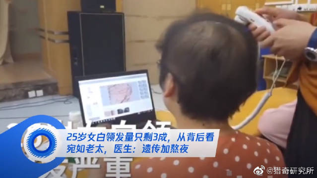 江苏南京一公司女白领,今年25岁。她因遗传原因,加上工作压力大