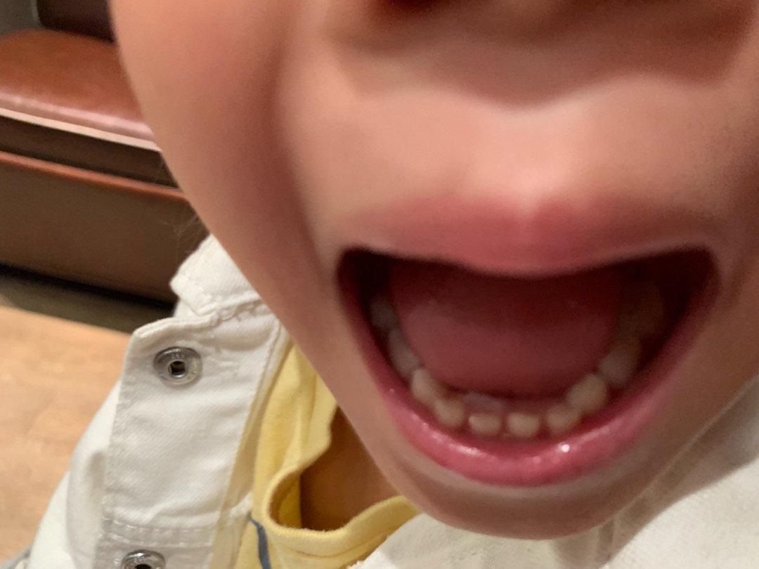 小D换牙了 两周前做的牙齿常规检查,牙医还说小D会是出牙晚的孩子
