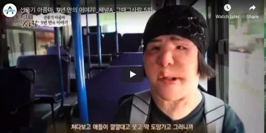 韩国经典整形失败案例电风扇大妈离世,一个决定痛苦了大半人生