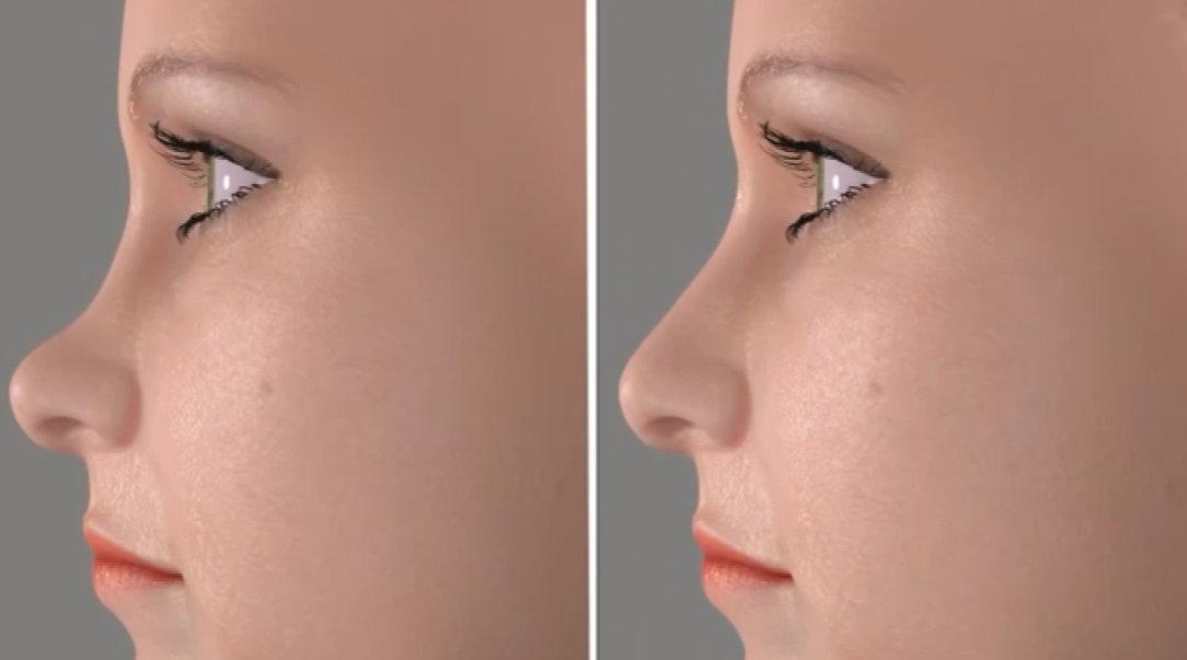 鞍鼻也是常见的需要通过手术来矫正的一种鼻型