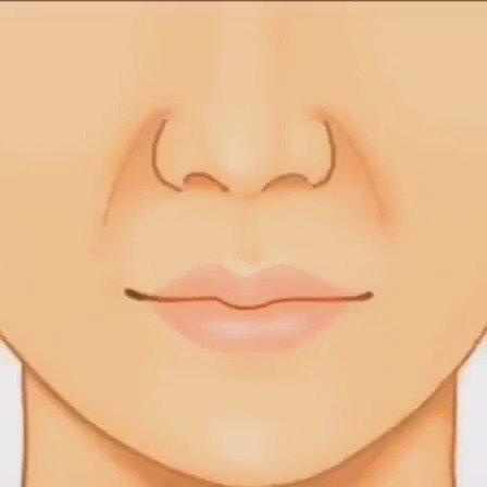 鼻翼基底填充,很多机构会用传统的材质硅胶、膨体、肋骨等