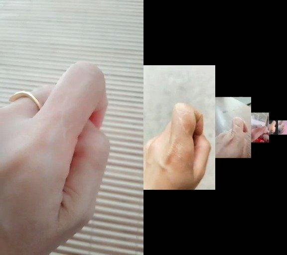 谁的手上没个疤痕呢?但你知道手指疤痕,在手相学中的寓意吗
