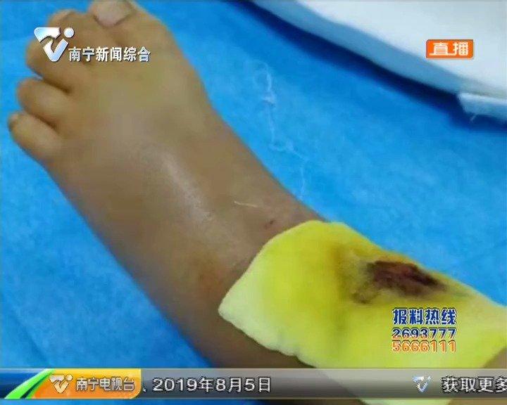 外墙瓷砖脱落砸伤5岁小孩 当事人索赔遇到难题