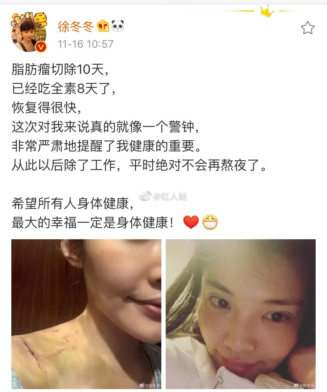 徐冬冬晒出术后伤口照片,此前有自媒体造谣称徐冬冬整容手术失败