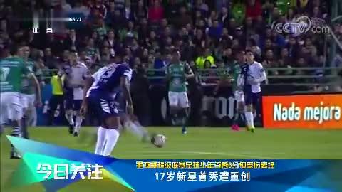 [国际足球]腓骨骨折 墨西哥17岁新星首秀遭重创