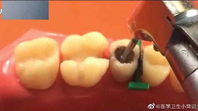 牙医是如何进行蛀牙龋齿修复的,长知识了