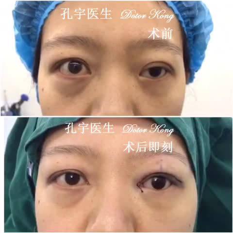 义眼上睑下垂矫正术:姑娘左眼先天性小眼球,睑裂短