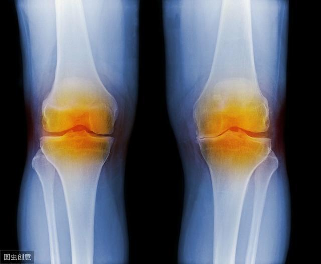 骨膜炎到底是什么呢?我们该怎样预防?