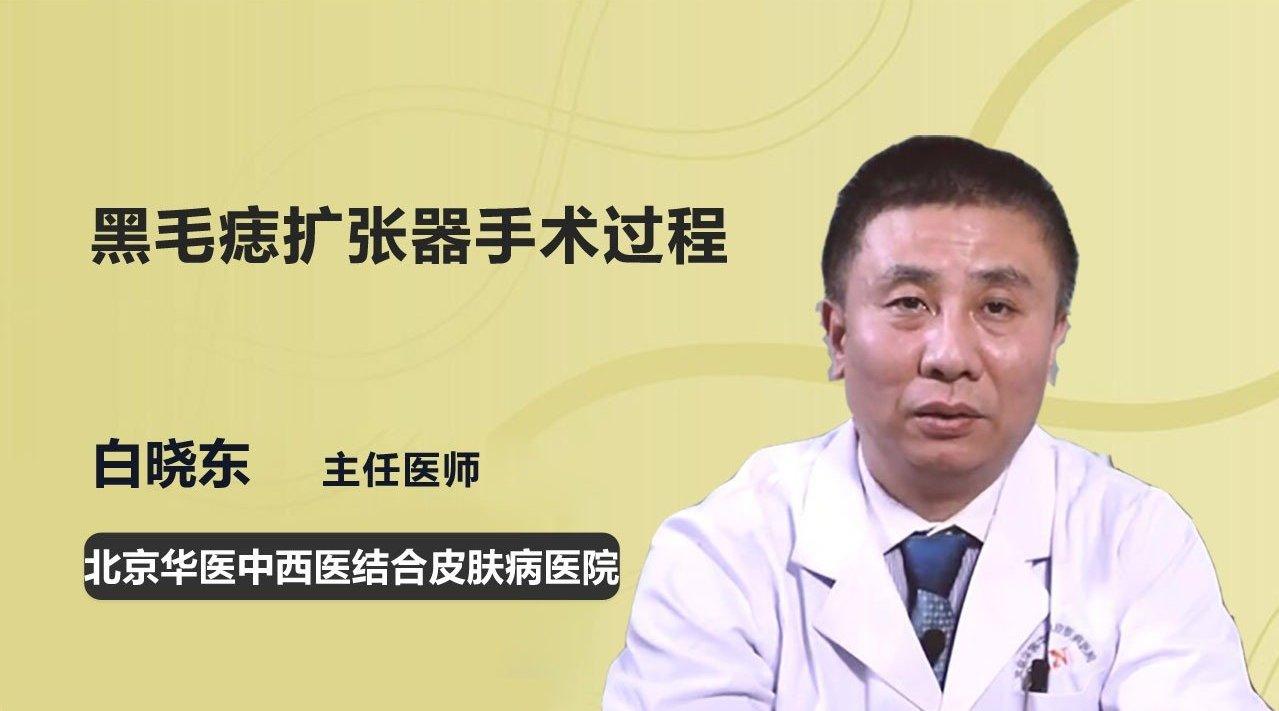 医生详解:黑毛痣扩张器手术过程