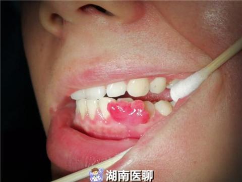 """准妈妈怀孕27周,牙龈上竟长出""""疙瘩""""?孕期口腔保健很重要"""